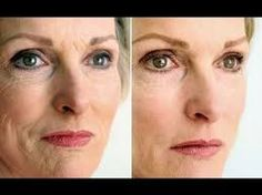 Employ These Two Face Aerobics Exercises To Remedy Eye Bags And To Dispose Of Under Eye Creases Facial Esthetics, Botox Forehead, Under Eye Creases, Botox Lips, Skin Md, Scar Removal Cream, Botox Injections, Dark Circles Under Eyes, Eye Wrinkle