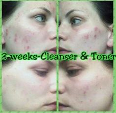 Amazing results from the It Works Cleanser. Ddawraps.myitworks.com