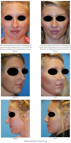Before & After Rhinoplasty and Nasal Tip Shaping for Large Hook Nose, Bulbous Tip, to Increase Tip Rotation, to Reduce the Nasal Dorsal Hump, Bump.