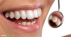 Ölziehen zur Zahnpflege und zum Entgiften