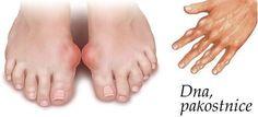 Testy U Doktora Ukázali Zvýšenú Hladinu - Diy Crafts - Qoster Tailors Bunion, Get Rid Of Bunions, Dna, Body Tissues, Natural Forms, Feet Care, Organic Beauty, Healthy Habits, Detox