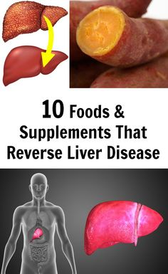 There are two main types of fatty liver disease. The first is alcoholic liver disease, which is the result of drinking excessive amounts of alcohol over time.