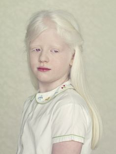 Brazilian photographer Gustavo Lacerda wanted to give albino people the chance to feel their importance, so over three years, he found people to photograph for his series, Albinos. Albinism had always aroused Lacerda�s attention, and he chose the posing portrait as a way to put his subjects in the forefront, which he says was �a [�]