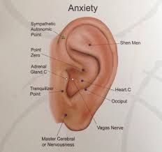 Let's explore some tinnitus acupuncture points to help relieve ringing in the ears. Firstly, we note that there are various causes of tinnitus so the effectiveness Ear Acupressure Points, Acupressure Treatment, Acupuncture Points, Ear Reflexology, Reflexology Points, Acupuncture For Anxiety, Acupuncture For Weight Loss, Alternative Health, Alternative Medicine