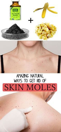 4 amazing ways to get rid of moles at home, naturally - try these 4 tricks and you will see amazing results immediately! Natural Medicine,Natural Remedies, homoeopathy