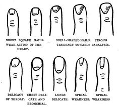 """fig 15  These vintage illustrations are from the book """"Palmistry for All"""" by Cheiro (1866-1936), published in May, 1916.  href=""""http://www.gutenberg.org/2/0/4/8/20480"""" rel=""""nofollow"""">www.gutenberg.org/2/0/4/8/20480"""