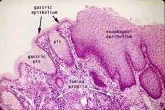 The mucosal epithelium undergoes a sharp transformation at the junction between the stomach and the esophagus.