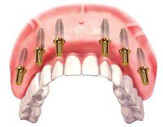 All on Six Dental Implant