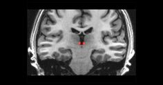 Meet the Tiny Worrywart Inside Your Brain #science #recovery #anxiety