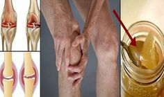 The Cause Of Pain In The Knees Is The Cartilage! Natural Gegeneration Of Cartilage With Only One Food Vicks Vaporub, Natural Treatments, Natural Cures, Natural Healing, Cartilage, Knee Pain, Medical Conditions, Back Pain, Pain Relief