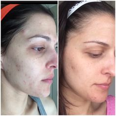 My before and after using Rodan + Fields Unblemish Regimen, MacroE, and adding in Reverse to help with scarring and discoloration from acne. Also using the Redefine multi function eye cream to help eliminate dark circles.