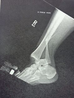 *Dislocated ankle with broken Fibula*  Exactly what happened to me!