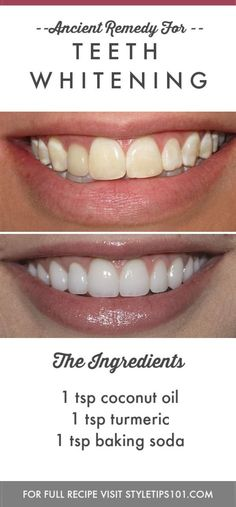 Skin Beauty Remedies Teeth Whitening - This ancient remedy for teeth whitening will help rebuild tooth enamel while making them as bright and shiny as they once were. Beauty Care, Beauty Skin, Health And Beauty, Face Beauty, Natural Teeth Whitening, Skin Whitening, Instant Teeth Whitening, Homemade Teeth Whitening, Teeth Whitening Remedies