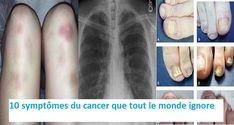 Généralement, la détection précoce du cancer est un élément crucial dans la lutte contre cette maladie mortelle. Cependant, les gens ignorent ou confondent les symptômes du cancer car les singes précoces peuvent souvent sembler comme un symptôme d'un virus ou rhume, mais vous devez savoir que ces signes ne sont pas spécifiques pour une maladie. […]