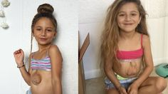 Cette petite fille vit avec sa maman en Floride et défie toutes les statistiques. Elle aurait dû mourir de sa maladie rare : son cœur est hors de son ventre