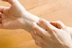 Eczema (Atopic Dermatitis) is a common allergic skin condition. Get the latest information on causes of eczema and skin rash symptoms. Find treatments for eczema as well as seborrheic dermatitis and more. Itchy Hands, Eczema On Hands, Get Rid Of Eczema, Psoriasis Cure, Psoriasis Symptoms, Plaque Psoriasis, Natural Remedies, Home Remedies, Allergies