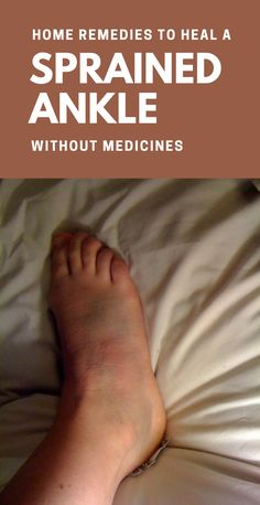 Home Remedies To Heal A Sprained Ankle Without Medicines Ankle Sprain Recovery, Severe Ankle Sprain, Broken Ankle Recovery, Ankle Rehab Exercises, Ankle Strengthening Exercises, Sprained Ankle Exercises, Sore Ankle, Ankle Pain, Treating A Sprained Ankle