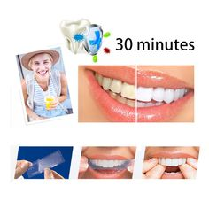 Smile Maker Fit Flex Teeth Fits Snap on Smile False Teeth Upper Cosmetic Fake Tooth Cover Perfect Smile Veneers with Box                   Description:      A special custom made mould works to disguise crooked, stained, missing and gapped teeth, the perfect smile teeth.       It is a great alternative to expensive braces. Perfect Smile Teeth, Snap On Smile, Teeth Whitening Methods, Dental Teeth, White Teeth, Health And Beauty, Cosmetics, Luxury Gifts, Braces