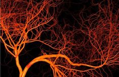 Scientists Discover New Method For 3D Printing Blood Vessel Networks - Wochit News