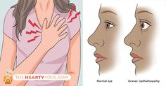 Grave's disease increases the risk of hyperthyroidism and goiters. Grave's disease is the most common cause of hyperthyroidism – a condition where the thyroid...