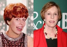 Carol Burnett Plastic Surgery Before and After Images - Celebrity Plastic Surgery Plastic Surgery Photos, Celebrity Plastic Surgery, Chin Implant, Environmental Influences, Under The Knife, Celebrities Then And Now, Carol Burnett, Boobs, Stars