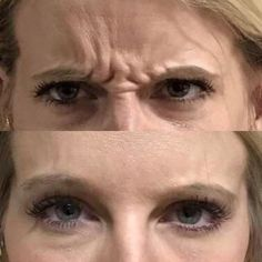 Before and After Photos of our client whom we treated with Botox Cosmetic. Amazing results!