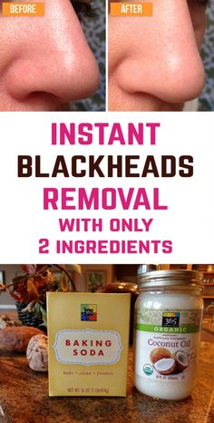 "Homemade remedy for blackheads. The recipe is actually a cleansing mask containi… Homemade remedy for blackheads. The recipeRead More ""Homemade remedy for blackheads. The recipe is actually a cleansing mask containi…"" Skin Care Remedies, Acne Remedies, Herbal Remedies, Health Remedies, Blackhead Remedies, Natural Blackhead Remover, Blackhead Remover Homemade, Blackhead Mask, Remedies For Blackheads"