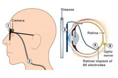 The FDA approved Argus II Retinal Prosthesis System aids adults who have lost their eyesight due to retinitis pigmentosa (RP), age-related macular degeneration or other eye diseases that destroy the retina's light-sensitive photoreceptors.