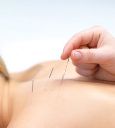Solid science proves acupuncture is an effective and safe pain-reliever. Now, research is closing in on how it works.