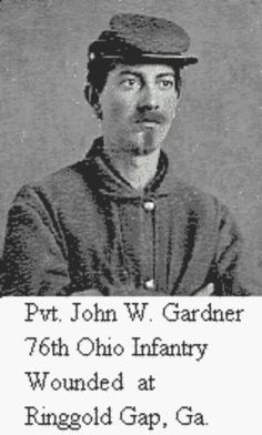 Pvt. John W. Gardner, 76th Ohio Infantry Regiment; Wounded at Ringgold Gap, Georgia.