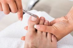 What Does a Nail Fungal Infection Look Like? Nail fungus can contribute to an unfortunate appearance. Signs can include unhealthy-looking nails, and you. Ugly Toenails, Thick Toenails, Skin Care Center, Gold Skin, Ingrown Toe Nail, Toe Nail Clippers, Podiatry, Wound Care, Fungal Infection