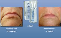 try the luminesce range Ageless Cream, Flawless Skin, Revolutionaries, The Secret, Serum, Health And Wellness, How To Make, Range, Website