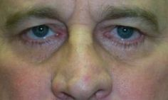 Cosmetic and Reconstructive Surgery of the eyelids, orbits and tear ducts Brow Lift Surgery, Droopy Eyelids, Eyebrows, Brow Lift, Drooping Eyelids, Brows, Eye Brows, Eyebrow, Brow