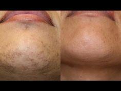 Black Skin Care: Treating Chin Hair in Black Women