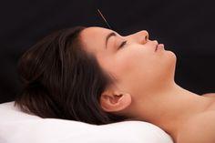 Acupuncture Relieves Migraines