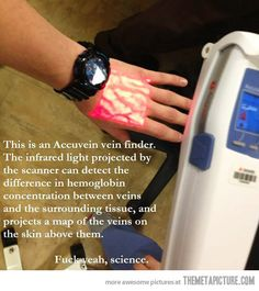 Vein finder for Phlebotomy