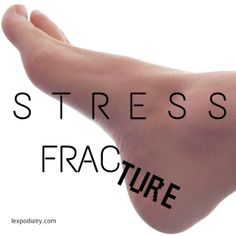 "Stress Fracture | Lexington Podiatry | This is not the time to ""walk it off"". Stress fractures are serious business and need to be taken care of!"