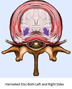 Case Study 105 - Massive Herniated Disc Treatment Saved This Patient From Surgery #IllinoisBackInstitute #TotalBackPainRelief #NoDrugsOrSurgery