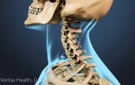 Types of Neck Pain