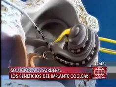 Implante Coclear: Solución para la sordera
