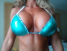 1000cc breast implants pictures