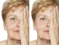 Which Anti Aging Solutions Will Make Your Skin Look Young Again? Knitted Flowers, Look Younger, Model Release, Beauty Skin, Your Skin, Anti Aging, Photo Editing, Royalty Free Stock Photos, Skin Care