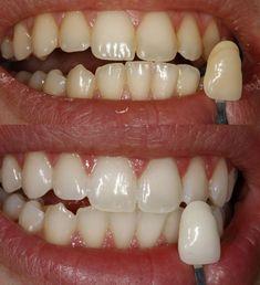 Witte tanden geven gezond aanzien