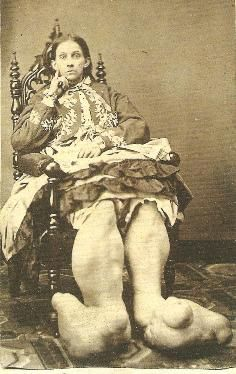 Image detail for -Don't Feel at Home in this World Anymore: Mutter Museum Old Circus, Vintage Circus, Creepy Vintage, Old Pictures, Old Photos, Vintage Photos, Freak Show Circus, Paranormal, Sideshow Freaks