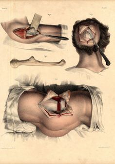 Body Anatomy, Anatomy Art, Human Anatomy, Medical Drawings, Medical Art, Lost Pictures, Scientific Drawing, Medical Anatomy, Jean Baptiste