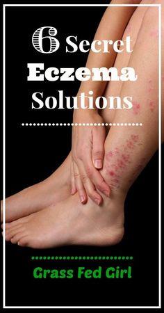 eczema-pin