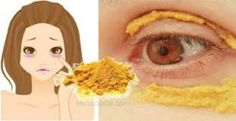 Put turmeric around the eyes, wait for 10 minutes, something incredible will happen! Turmeric has a special place in Indian cuisine because of its golden . Skin Care Regimen, Skin Care Tips, Prevent Wrinkles, Tips Belleza, Young And Beautiful, Skin Problems, Dark Circles, Turmeric, Tumeric Face