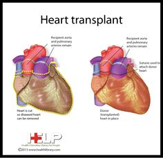 Heart Transplant-easy way to see how it's sutured in