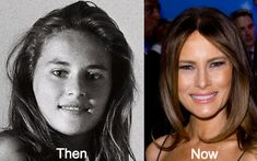 Melania-Trump-Plastic-Surgery-Before-and-After-Photos
