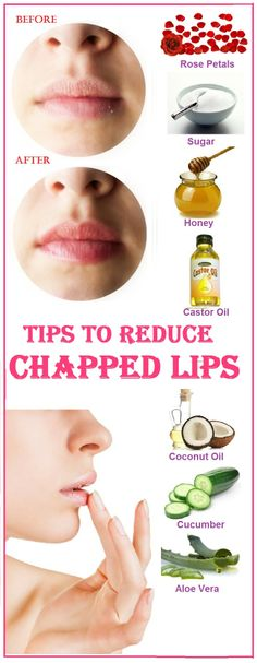 best 5 tested home remedies for chapped lips . Diy Beauty Face, Make Beauty, Health And Beauty Tips, Beauty Care, Health Tips, Facial Care, Lip Care, Body Care, Home Remedies For Face